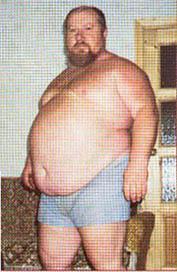 болезни при ожирении фото